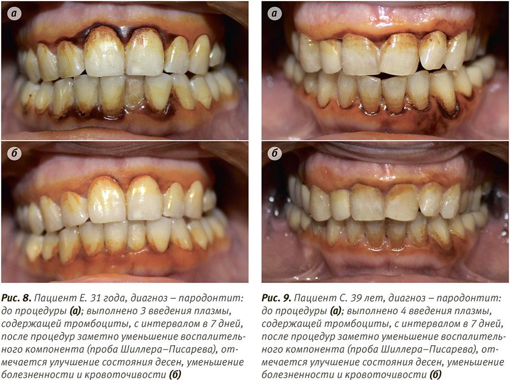 Плазмолифтинг десны отзывы фото до и после